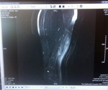Arian_foster_tweets_mri_of_hamstring_gets_instant_diagnosis