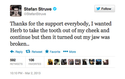 Struve_jaw_medium