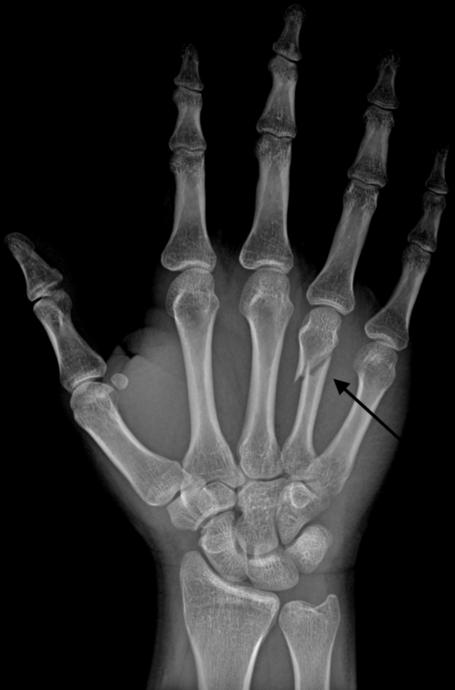 Neck_fracture_of_the_fourth_metacarpal_bone_medium