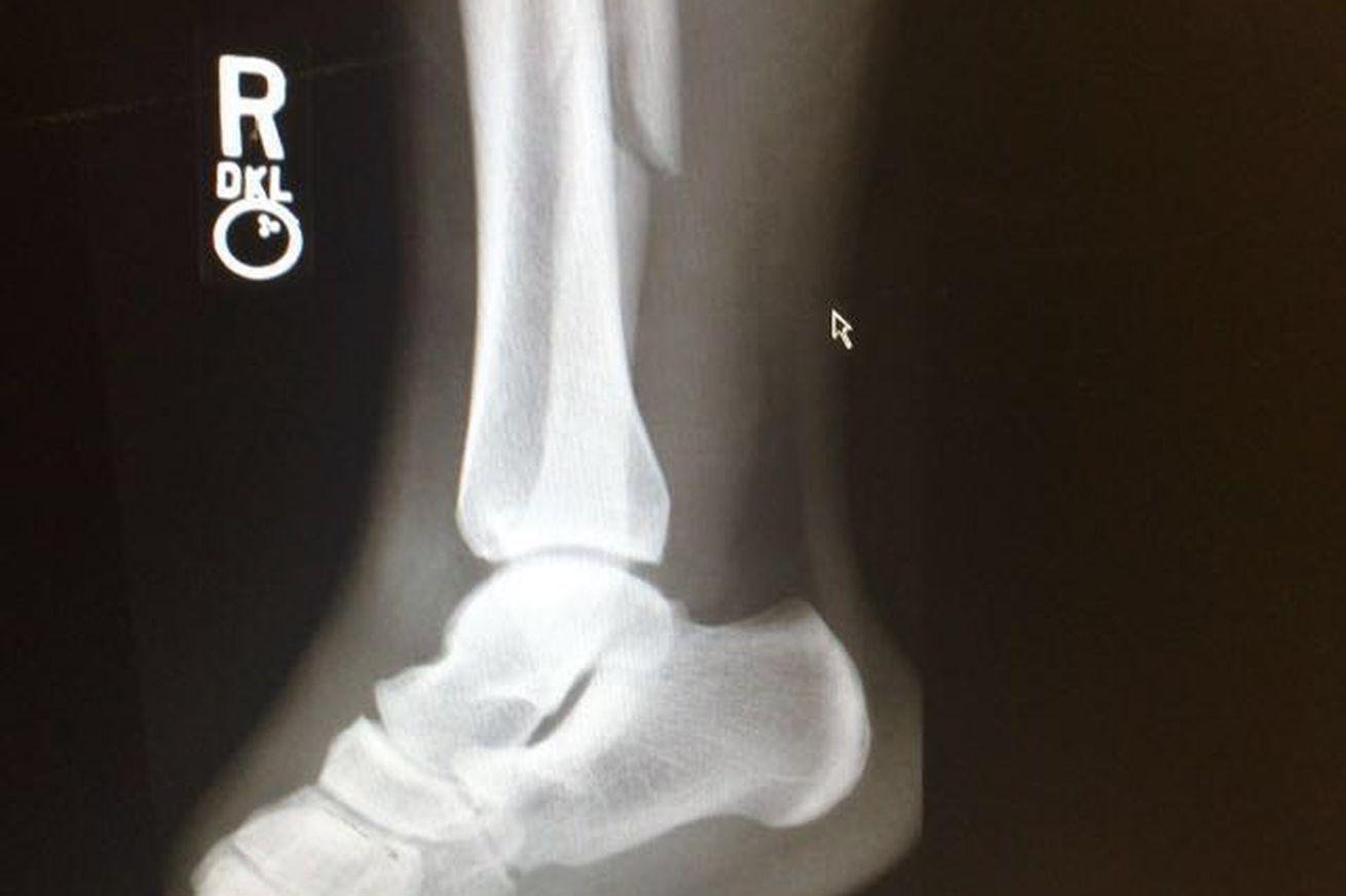 community news, Pitbull Freire broke right fibula in loss to Ben Henderson