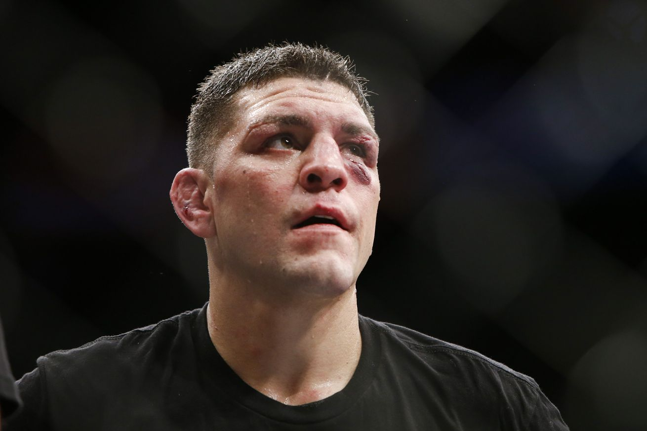 community news, Tyron Woodley: 'Idiot' Nick Diaz may have lost seven figure payday due to low IQ