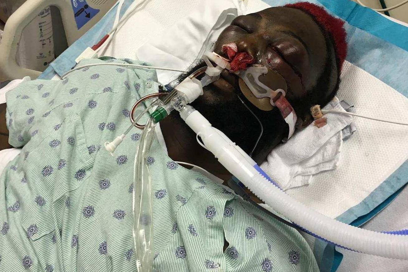 community news, Back from the dead: DaDa 5000 posts grisly hospital photo after nearly dying inside Bellator cage