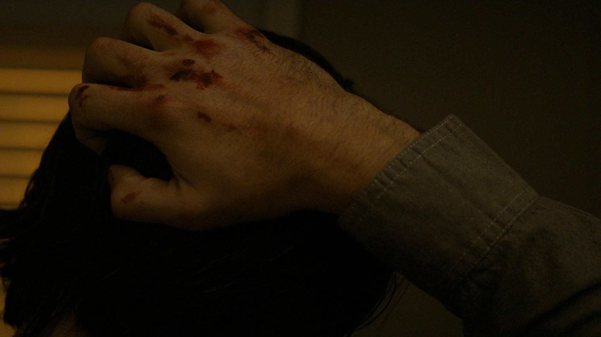 Ray's bloody knuckles